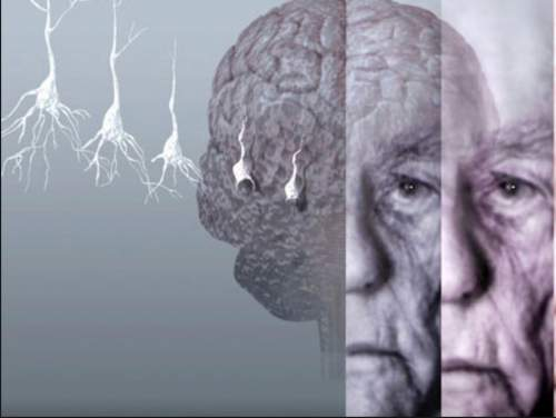 This-Vitamin-Deficiency-Increases-The-Chance-of-Developing-Dementia-or-Alzheimers