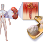 Kidney Cancer: Overview, Symptoms and Treatment