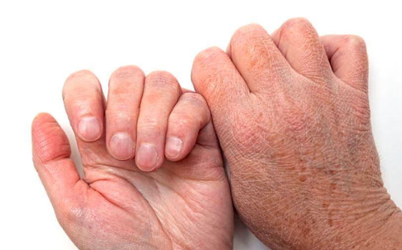 dry skin in elderly