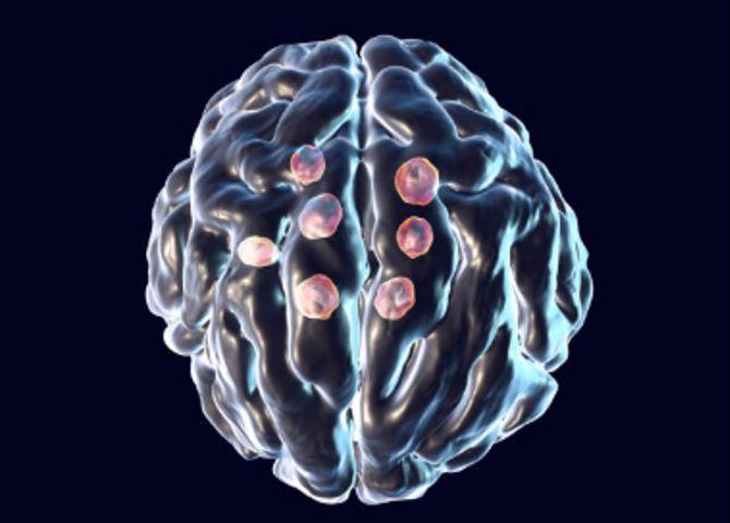 meningitis infection