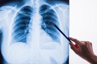 eldr - Lung Disease