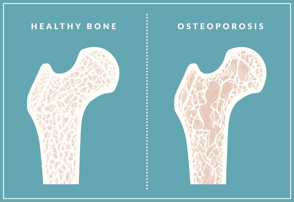 Osteoporosis-eldr